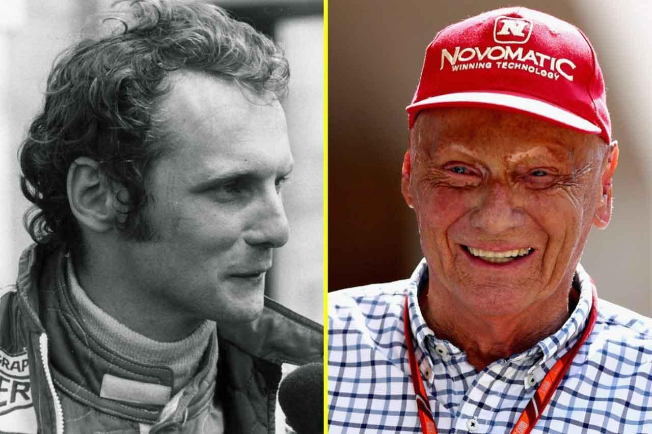 Niki Lauda Vorher Nachher